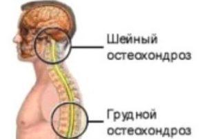 uprazhneniya_pri_osteoxondroze_sheyino-grudnogo_otdela_pozvonochnika