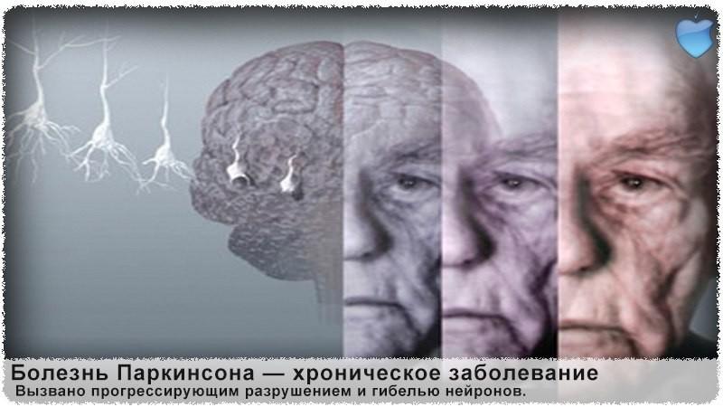 Parkinsona_bolezn_prichiny_vozniknoveniya_i_lechenie
