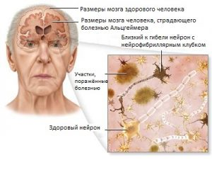 Bolezn_Altsgeymera_simptomy_i_priznaki