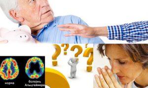 Bolezn_Altsgeymera_simptomy_i_priznaki_interesnye_fakty
