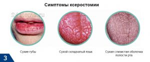 Sukhost_vo_ rtu_prichiny_kakoiy_bolezni_diagnostika