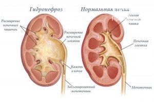 Mochekamennaya_bolezn_simptomy_i_lechenie_u_muzhchin