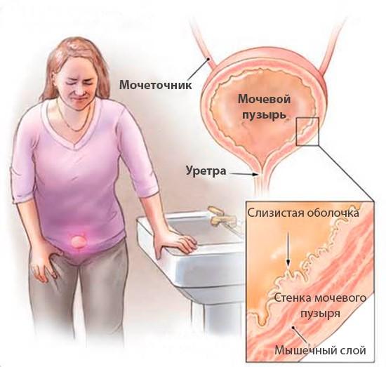 Болезни мочевого пузыря у женщин симптомы лечение Анатомия здоровья