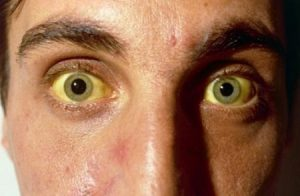 Zabolevaniya_pecheni_simptomy_i_priznaki_bolezni