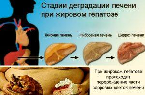 Zabolevaniya_pecheni_simptomy_i_priznaki_bolezni_lechenie