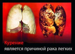 Kurenie_i_rak_lyegkikh_simptomy_i_priznaki
