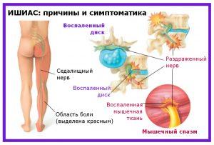 2 Lechenie_sedalishchnogo_nerva_v-domashnikh_usloviyakh