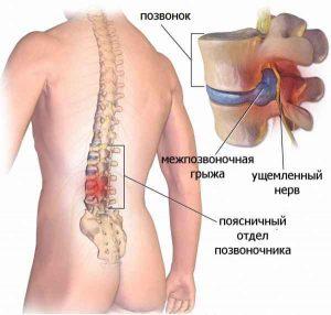 Bolit_spina_v_oblasti_poyasnitsy_u_muzhchin