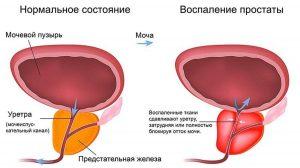 Prostatity_simptomy_i_lechenie