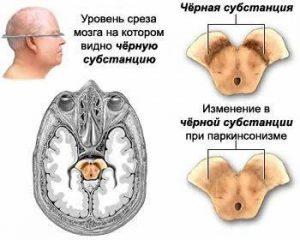 Bolezn_Parkinsona_simptomi_i_priznaki