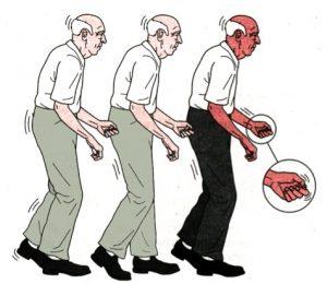 Bolezn_Parkinsona_simptomi_i_lechenie