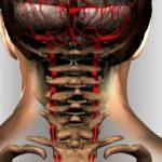 Osteoxondroz_sheyinogo_otdela_pozvonochnika_simptomi_i_lechenie_i_VSD