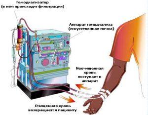 Pochki_simptomi_bolezni_i_lechenie
