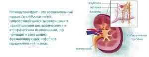 Pochki_simptomy_bolezni_i_lechenie_prichiny