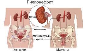 Pochki_ simptomi_bolezni_i_lechenie_pielonefrit