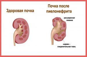 Pochki_simptomy_bolezni_i_lechenie_pochechnoy_nedostatochnosti