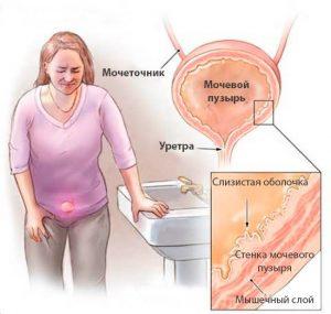 Bolezni_mochevogo_puzyrya_u_zhenshchin_simptomi_lechenie