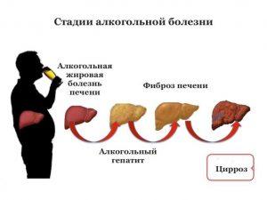 Zabolevaniya_pecheni_simptomy_i_priznaki_bolezni_prichiny