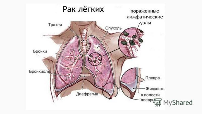 Rak_lyegkikh_simptomy_i_priznaki