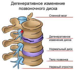 Bolit_spina_v_oblasti_poyasnitsy_prichiny