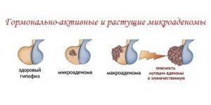 Mikroadenoma_gipofiza_golovnogo_mozga_u_zhenshchin