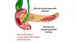 Podzheludochnaya_zheleza_gde_nakhoditsya-i_kak_bolit_lechenie_i_dieta