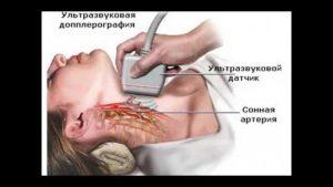 Ateroskleroz_sosudov_golovnogo_mozga_diagnostika