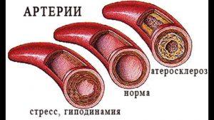 Ateroskleroz_sosudov_chto_eto